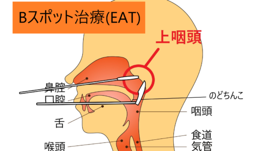 【Bスポット治療】3軒目の病院でさらに驚愕。慢性上咽頭炎